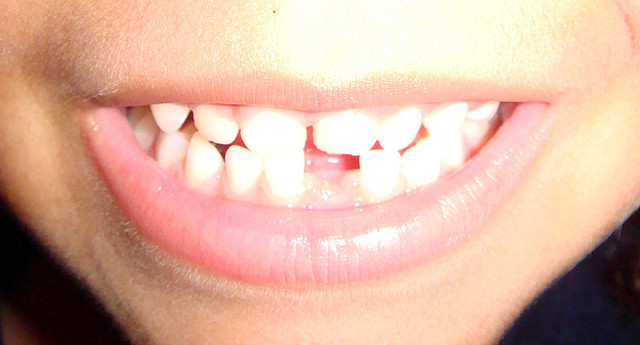 Tooth Fairy Inflation! Lost Tooth Now Nets Nearly $4