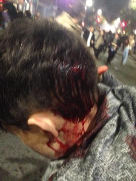 Cindy Pincus said an officer hit her on the head, drawing blood, during the Dec. 6 protests. (Cindy Pincus/Berkeleyside)