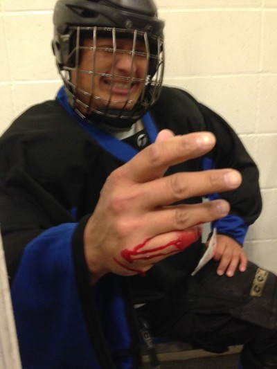 Damon Doe took a frozen puck to his pinkie finger, almost slicing it off.