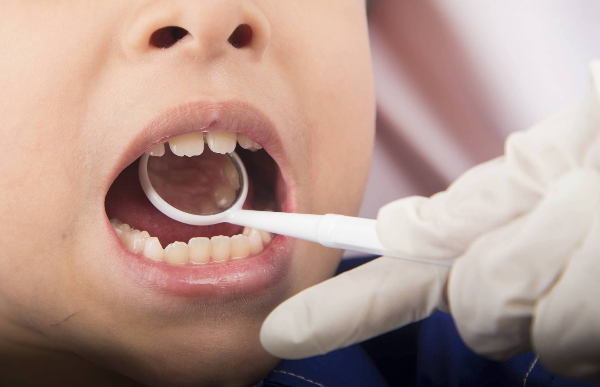 Dentists Reopen With Changes To Protect Workers, Patients | KQED