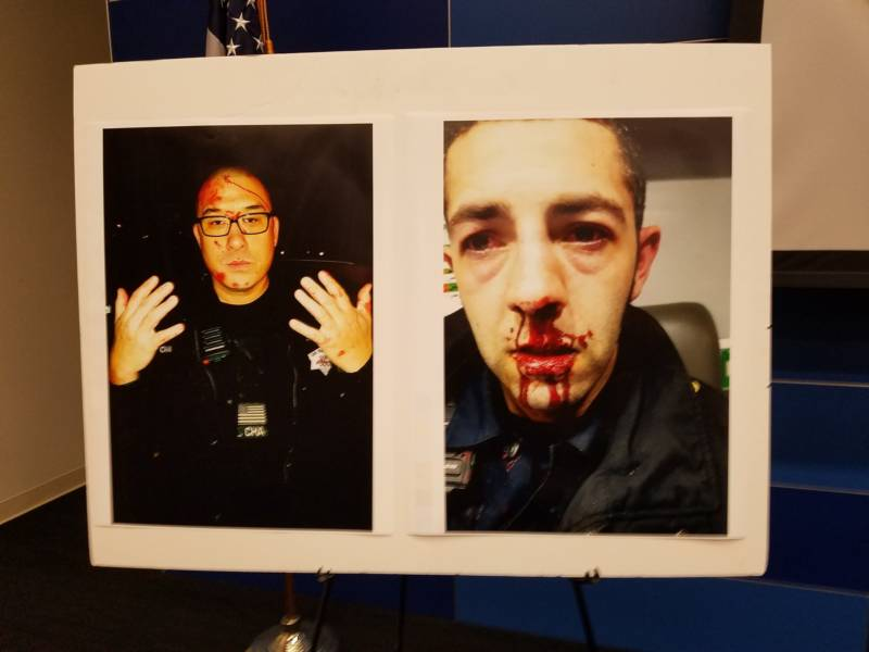 Photographs of SFPD officers Kenneth Cha and Colin Patino following their Jan. 6 encounter with Sean Moore as displayed at a Police Department press conference on Jan. 18.