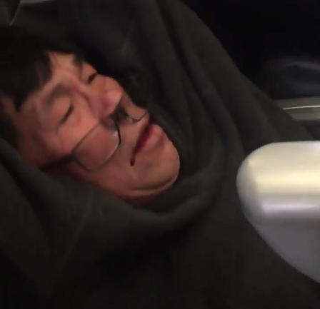 United Passenger Suffered Broken Nose, Lost Teeth: Lawyer