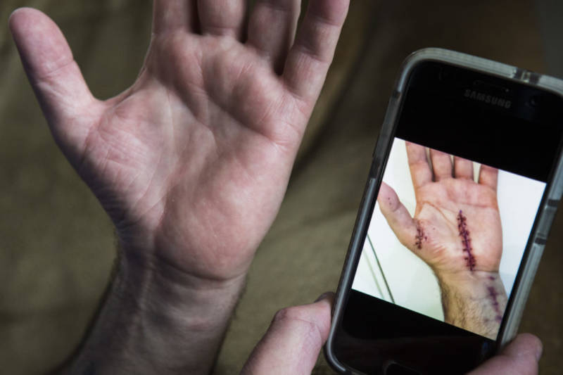 Mark Eberley shows his scar from surgery after carpal tunnel syndrome left him unable to continue work at the Tesla factory in Fremont. He has been out of work for years.
