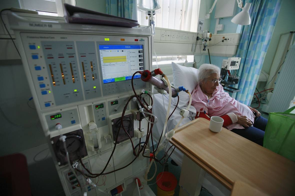 Proposition 8: Revenue Cap on Dialysis Clinics Fails, Supporters to Try Again in 2020