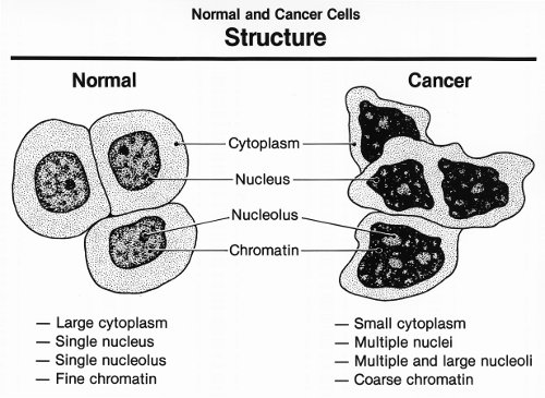 Cancer cells have mutated into something foreign our bodies can be trained to attack. (Wikimedia Commons)