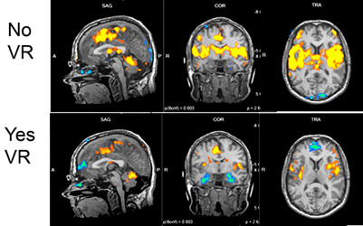 These images from an fMRI scan show areas of the brain affected by pain, and how they shrink when the patient is immersed in a virtual reality world. (Courtesy Dr. Sam Sharar/University of Washington)