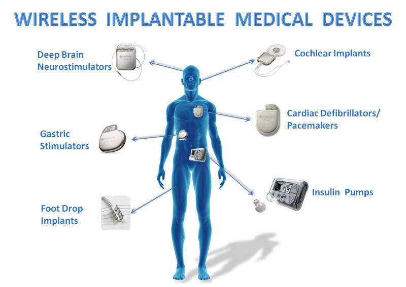 Many there are many implantable medical devices on the market that have vulnerabilities, in fact, the Food and Drug Administration has received approximately 56,000 reports of adverse events associated with the use of infusion pumps, including numerous injuries and deaths.