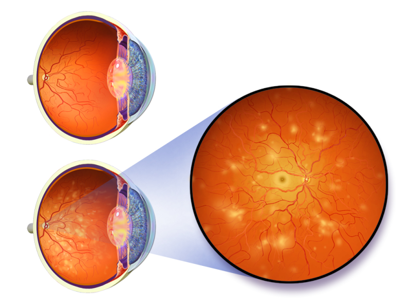 An illustration depicting diabetic retinopathy