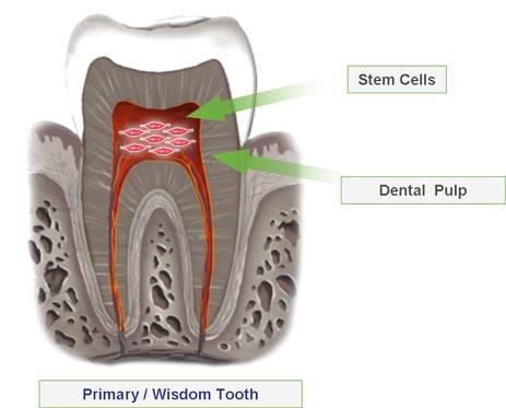 the students used dental pulp stem cells from excised wisdom teeth to create new tissue.