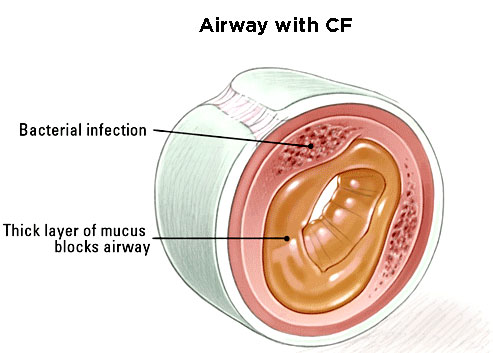 cystic fibrosis image