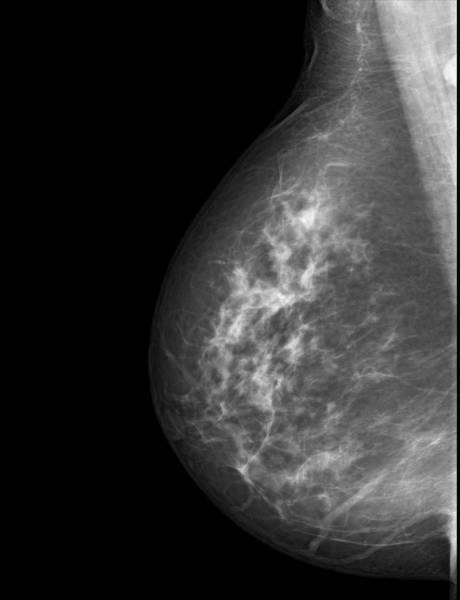 A mammogram image.