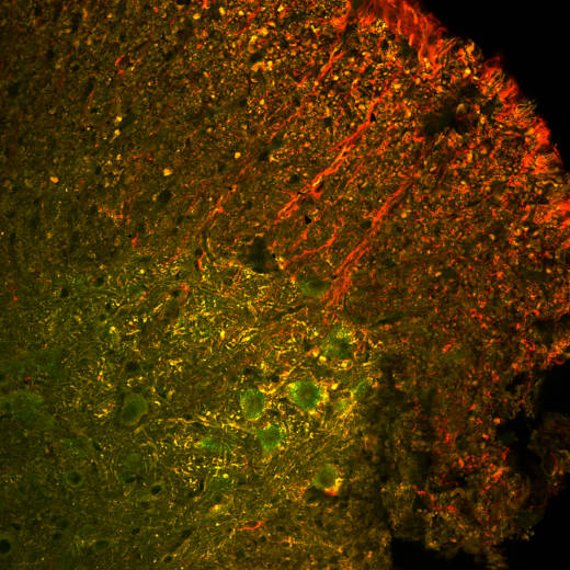 A cross-section of mouse spinal cord tissue showing cells in which the CRISPR-Cas9 gene has been expressed (green). The Cas9 gene has been successfully inserted into motor neurons (yellow), rescuing them from death, but not the support cells called astrocytes (red).