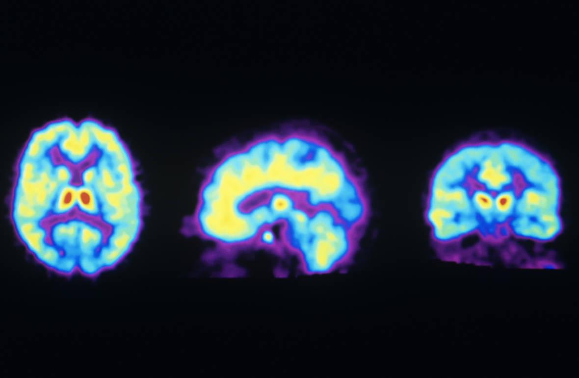Antidepressant Ketamine Triggers Brain's Opioid System