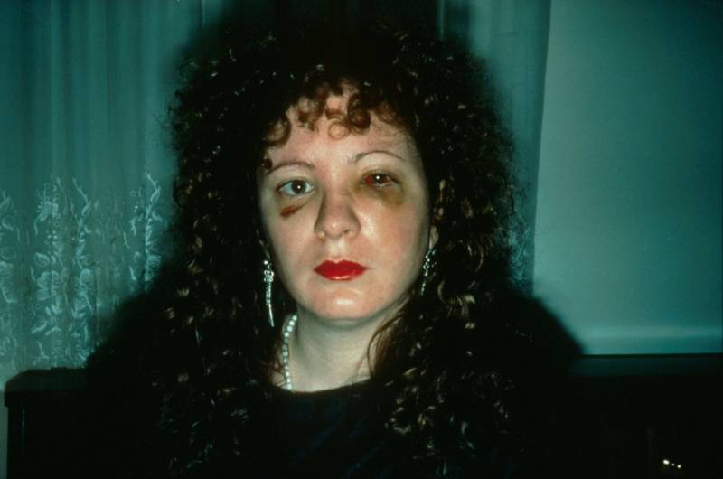 "Nan Goldin, ""Nan one month after being battered,"" 1984."
