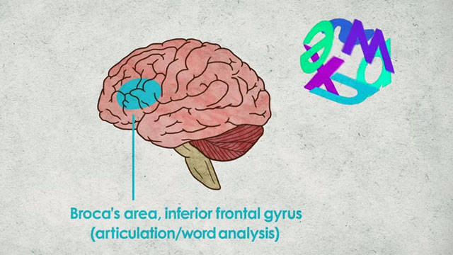 Understanding Dyslexia And The Reading Brain In Kids Mindshift >> What S Going On Inside A Dyslexic Student S Brain