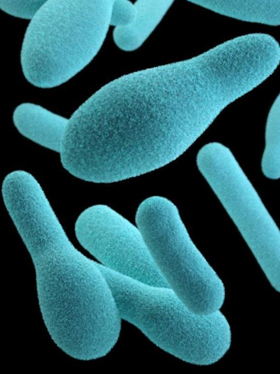 A depiction of Clostridium botulinum, the bacteria that create a deadly toxin. The preformed toxin can be found in home-canned foods and some retail products, such as canned cheese, chili sauces and oil infused with garlic. Jennifer Oosthuizen/CDC