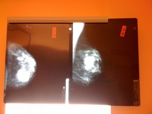 Suspicious mass on mammogram. (KristieWells: Flickr)