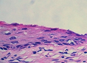 Healthy cervix cells, gathered during a Pap test, as seen under a microscope. (Euthman/Flickr)