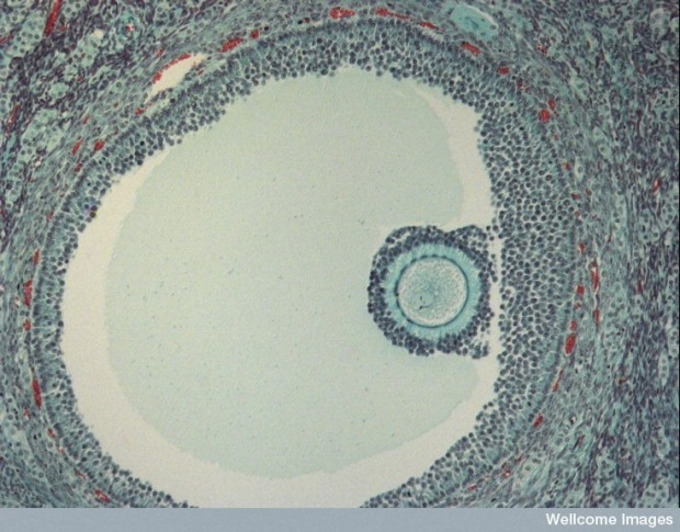 Human egg in a follicle. (Ivor Mason, KCL, Wellcome Images via Flickr)
