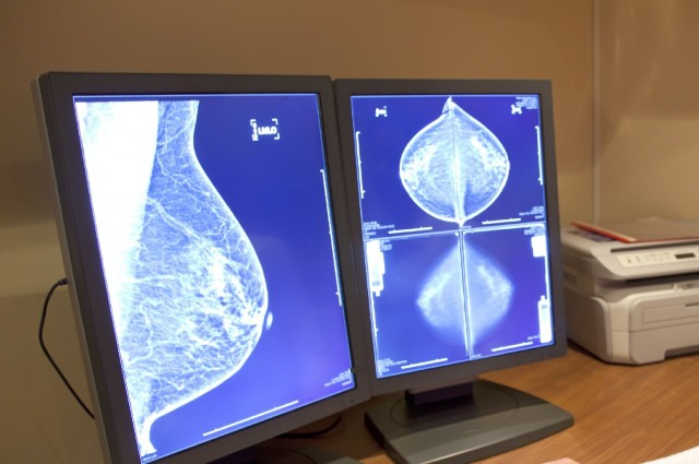 50-Year Review: Mammography Benefits Oversold, Harms Minimized