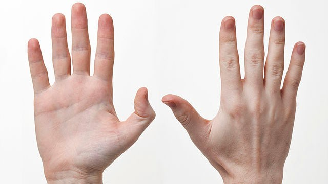 Why Are So Many People Right-Handed? Genetic Research May Hold The Clues