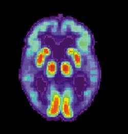 A no answer for Alzheimer's on a 23andMe test does not mean you are not at a higher risk for the disease.  This image of an Alzheimer brain courtesy of Wikimedia Commons.