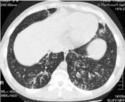 23andMe is very good at predicting simple genetic diseases like cystic fibrosis.  This image of the lung of a patient with CF courtesy of Wikimedia Commons.