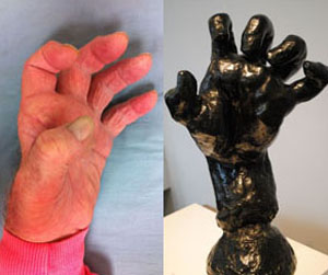 CMT hand and Sculpture that looks like it