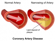 Athlerosclerosis, the formation of yellowish plaque made mostly of cholesterol inside artery walls. blocks blood flow and can lead to cardiac arrest. (Blausen/Wikipedia)