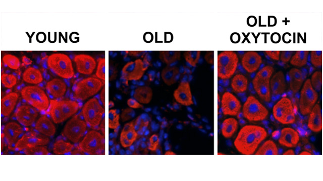 New UC Berkeley Study Shows Oxytocin May Help Rejuvenate Aging Muscles