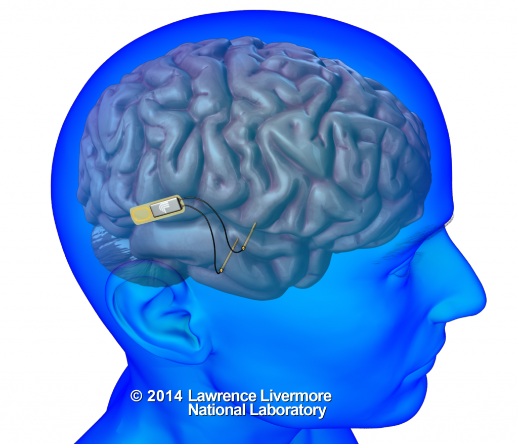 Researchers at Lawrence Livermore National Lab will develop an implantable device that will use electrical signals to communicate with individual neurons in the brain. UCLA scientists will use the device to study and repair memory function in brain trauma patients. (Courtesy of LLNL)