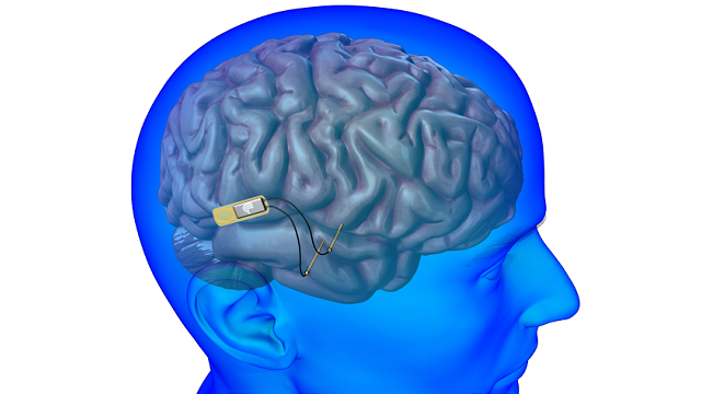 With DARPA Support, Lawrence Lab Seeks to Develop Brain Implant to Treat Memory Loss