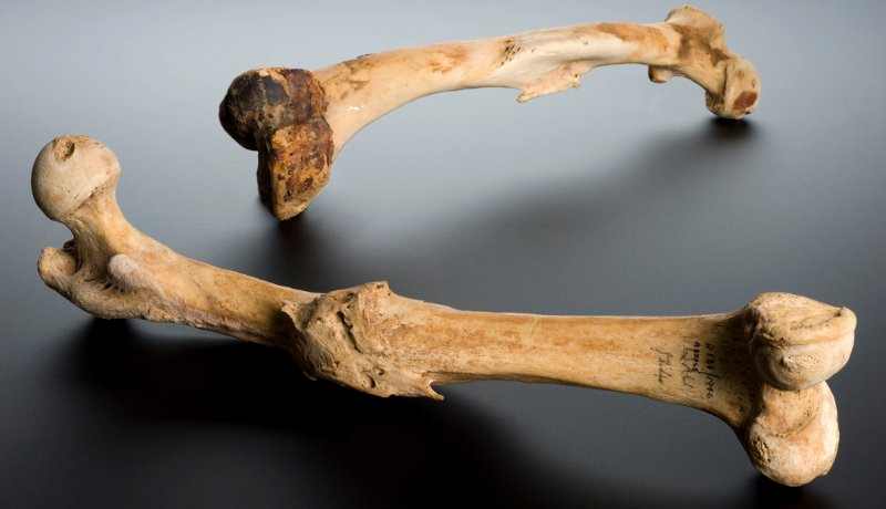 In a spectacular bit of science, a group of scientists has sequenced the DNA from the femur of a man who died 45,000 years ago. The femur is over 20 times older than this 2000 year old one. (Wikimedia Commons)