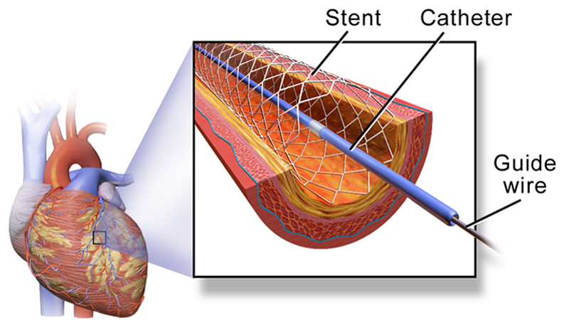 Stanford Identifies Drug That May Improve Cardiac Stents