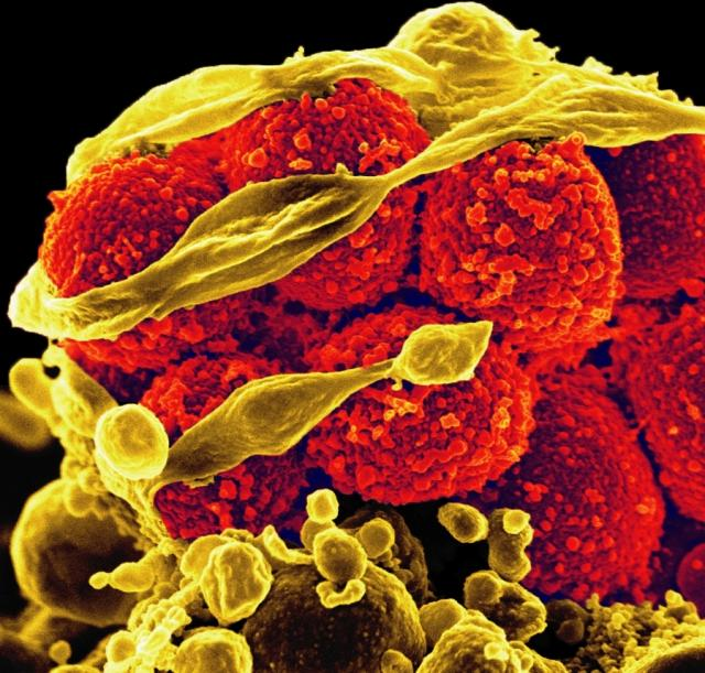 This scanning electron micrograph shows MRSA, methicillin-resistant Staphylococcus aureus bacteria (the yellow, round items), killing and escaping from a human white cell.