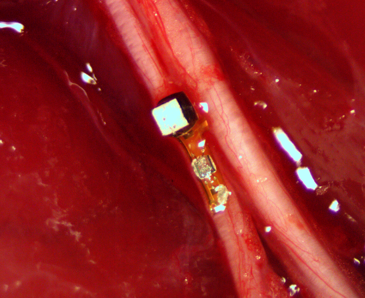 Peripheral nerve of a lab rat that has a neural dust implant. Called a 'neural mote' this implant can sense electrical activity of target neurons in the body.