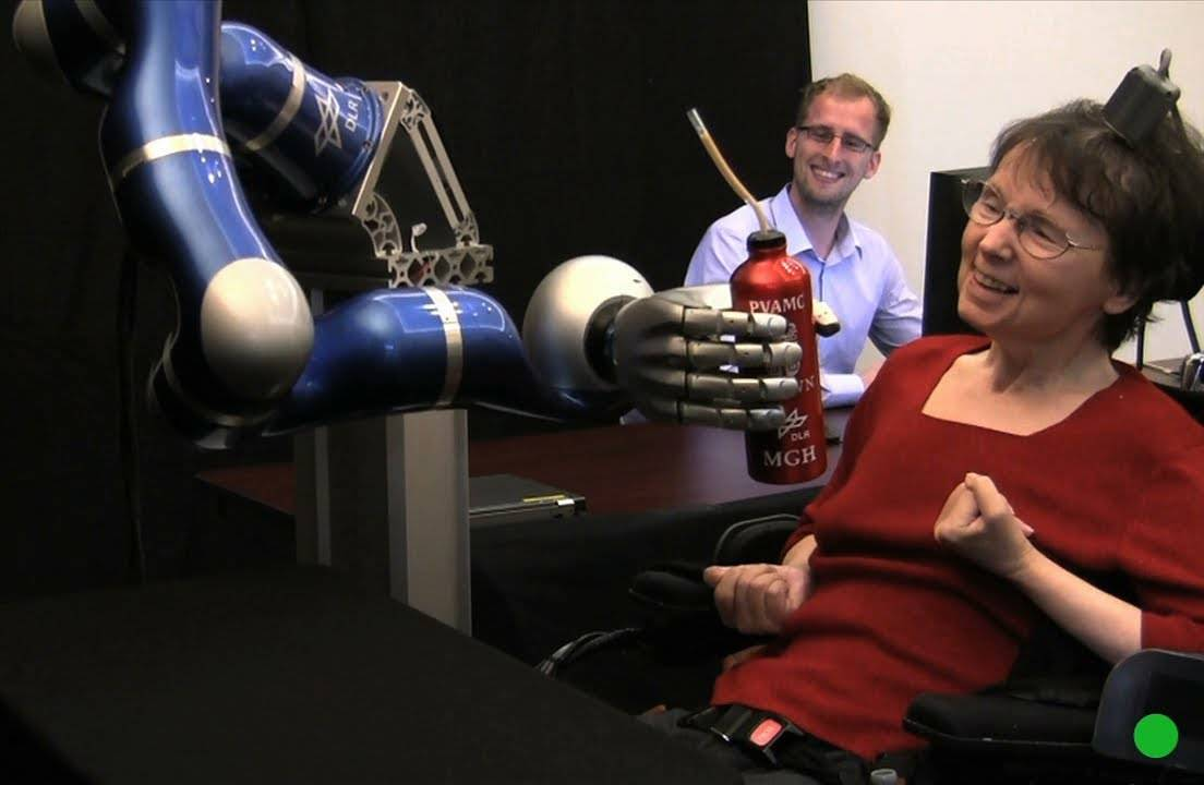 Cathy Hutchinson, a woman who is completely paralyzed, practices moving a robotic arm with her mind. She's communicating through the box on the top of her head, which has been implanted in her brain.