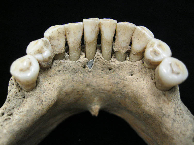 What a Blue Speck Found in Ancient Teeth Could Reveal About Female Artists in the Middle Ages