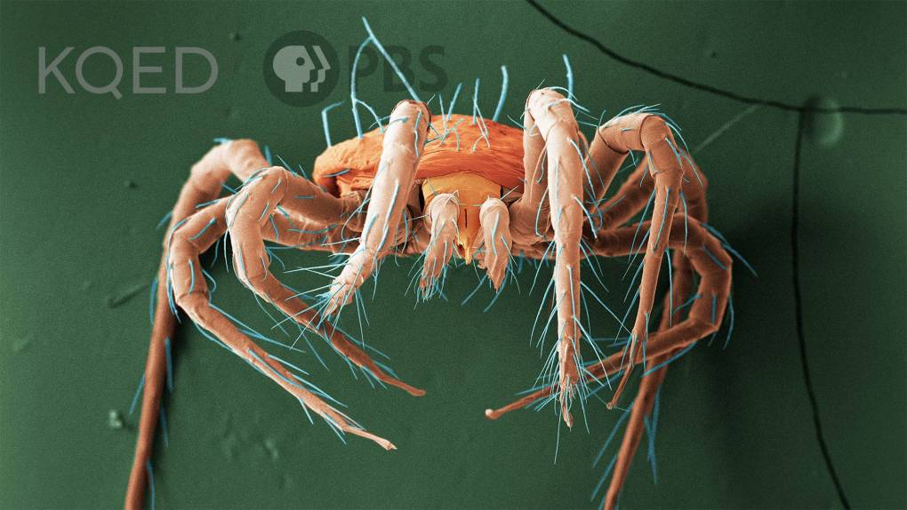 Scanning Electron Microscope of a tiny arachnid, persimilis mite; colorized orange on a green background with blue hairs