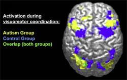 An fMRI scan of an autistic brain.