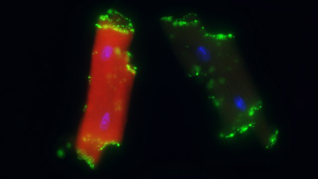 Beating heart cells created by Gladstone Institutes researchers.