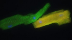 Mouse heart muscle cells created by Gladstone Institutes researchers.