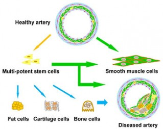 Within walls of blood vessels are smooth muscle cells and newly discovered vascular stem cells. The stem cells are able to differentiate into smooth muscle cells, fat, cartilage and bone cells. UC Berkeley researchers provide evidence that these stem cells are contributing to clogged and hardened arteries.