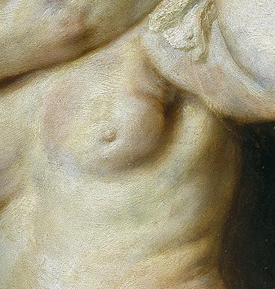 breast cancer in Rubens