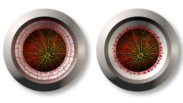 Blood vessel growth in a healthy (left) and diseased (right) eye - Allison Bruce