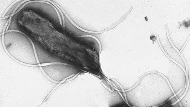 H. pylori has lived in our stomachs for 200,000 years. (Photo: Yutaka Tsutsumi)