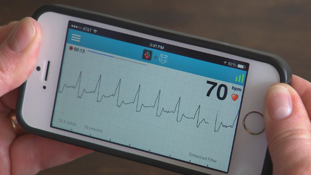 AliveCor is the maker of a smartphone case that can record within seconds an EKG, a measure of heart health.