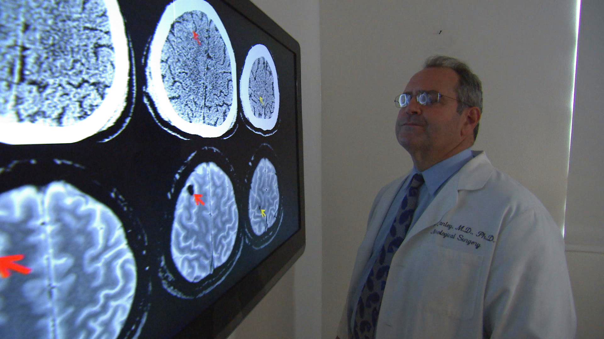 Dr. Geoffrey Manley looks at CT and MRI scans at the Brain and Spinal Injury Center in San Francisco.