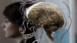 Decoding Our 'Brain Bugs'